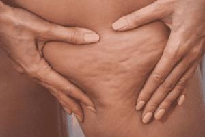 massage modelage minceur anti cellulite