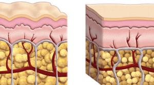 Cellulite drainage lymphatique rochefort